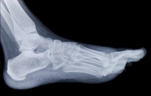 Foot and Ankle Fractures - Foot Specialists of Greater Cincinnati