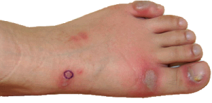 Treatment for Skin Lesions on Feet