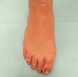 Bunion treatment and bunion relief at Foot Specialists of Greater Cincinnati