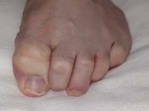 Hammer Toe treatment at Foot Specialists of Greater Cincinnati